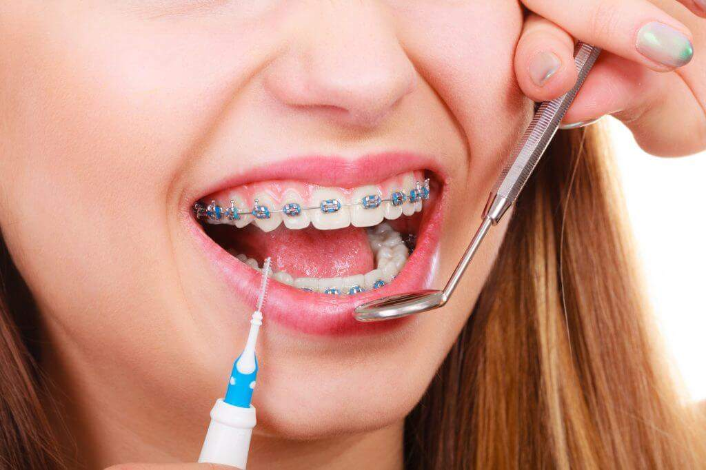 What Are The Benefits Of Getting Braces As An Adult?