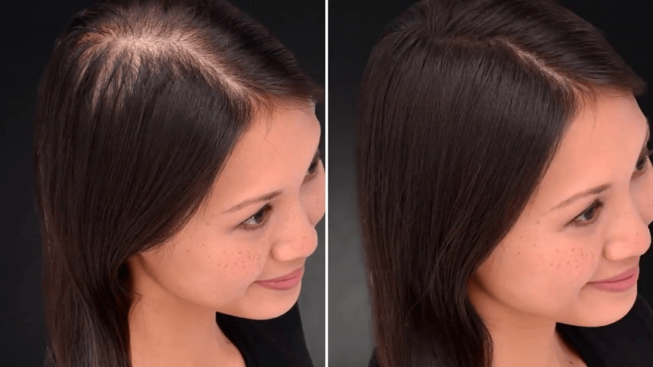 How to Install Hair Patch? Your Simple Hair Guide